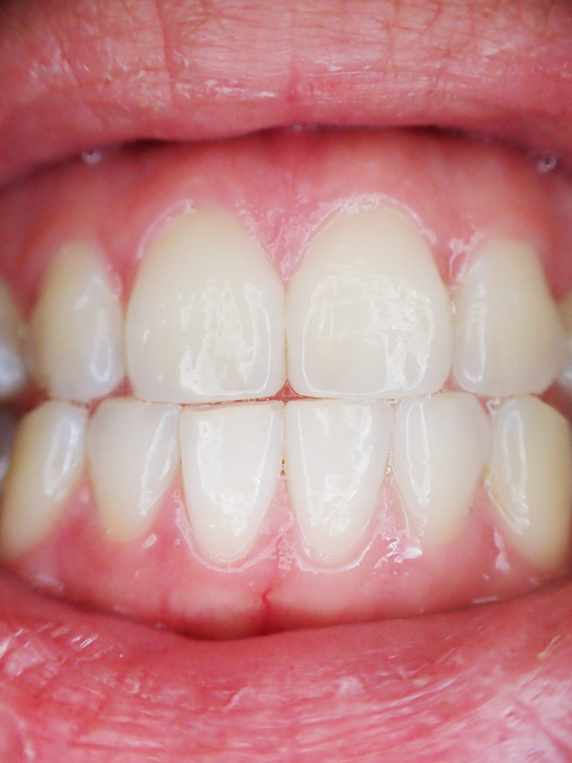 This is a set of healthy teeth - Oriel Orthodontics